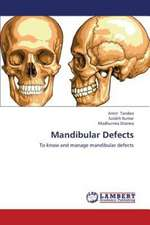 Mandibular Defects