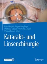 Katarakt- und Linsenchirurgie