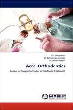 Accel-Orthodontics