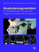 Sinusbodenaugmentation