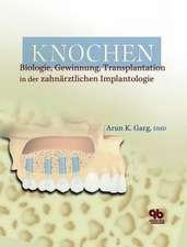 Knochen: Biologie, Gewinnung, Transplantation in der zahnärztlichen Implantologie