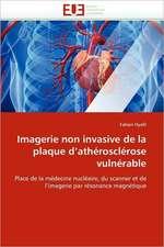 Imagerie Non Invasive de La Plaque D''Atherosclerose Vulnerable:  Integration Et/Ou Assimilation?