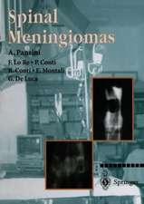 Spinal Meningiomas