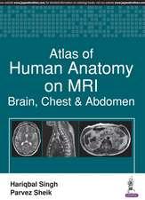 ATLAS HUMAN ANATOMY ON MRI BRAIN CHESP